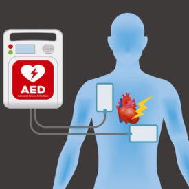 Defibrillator sinnvoll bei Elektroinstallationen?